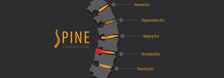 Chiropractic Fort Worth TX Bulging Discs