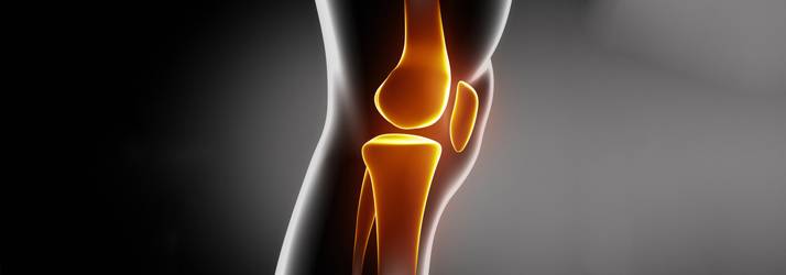Chiropractic Fort Worth TX Osteoarthritis
